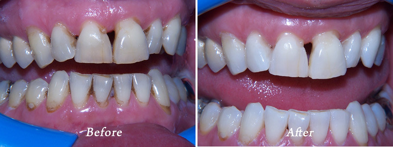 Polanight Teeth Whitening Polanight Teeth