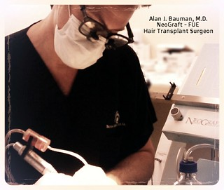 Dr. Alan Bauman performing NeoGraft FUE Hair Transplant