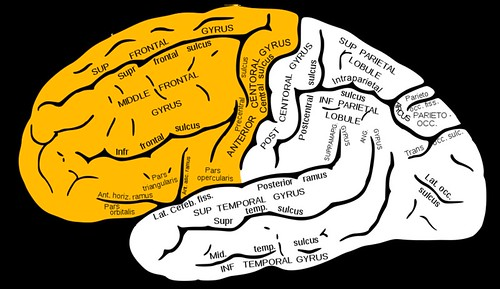 This image of the brain has the frontal lobe highlighted.