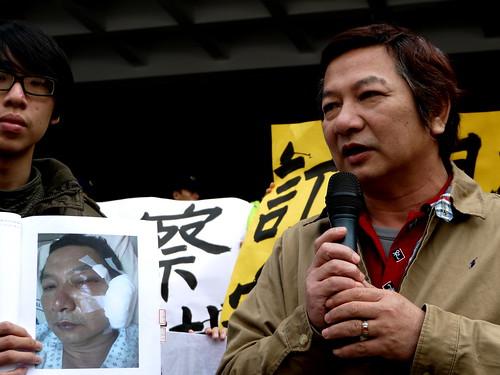 苑裡居民陳宏州遭英華威的保全打傷臉,至今仍顏面神經失調