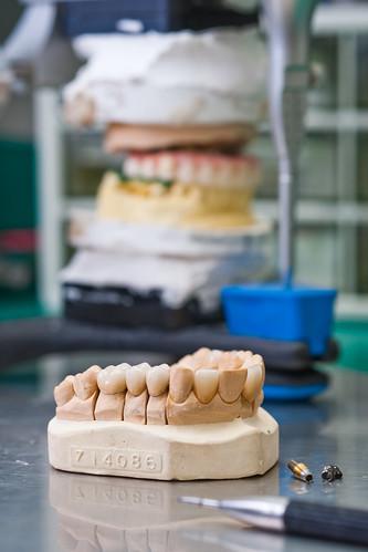 權泓牙醫診所-彰化植牙工廠4