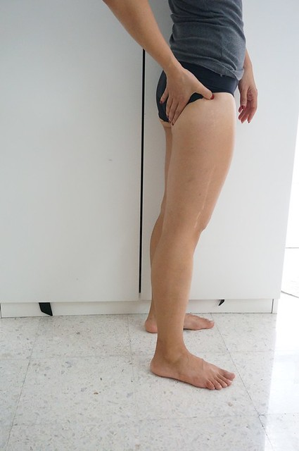 REVIEW Coolsculpting by Clique Clinic - Before and after pictures of Rebecca Saw-003