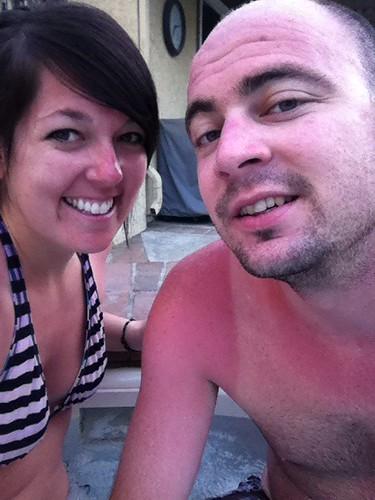 cuzzi and sunburns.