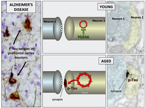This image shows the changes that occur in the brain circuitry for alzheimer's patients.