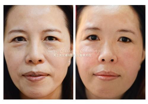美上美醫學美容莊盈彥醫師位客人施打玻尿酸,打造自然的蘋果肌。