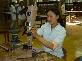 The ICRC produces low-cost prosthetics for landmine victims in Cambodia, 2004. Photo: AusAID