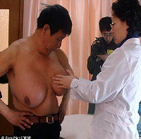 Gynecomastia – Huge Male Breast Removed – Male Breast Reduction