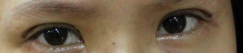 變身|雙眼皮日記♥.術後七天,明天要拆線囉。