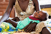 Elizabeth Kegi, a one and a half-year-old child with severe malnutrition, rests on her mother's lap at the malnutrition ward in Al Shabbab hospital in Juba, South Sudan.  © Albert Gonzalez Farran, UNICEF