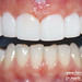 teeth crowding veneers Lebanon Beirut 3