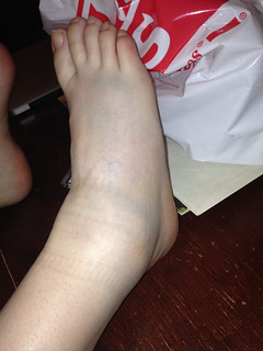 Right foot bruising