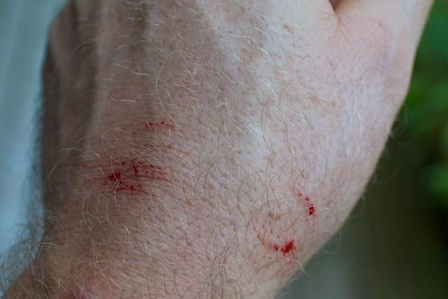 Snake bite, QLD: Catcher bitten by brown snake felt nothing |Garden Snake Bite