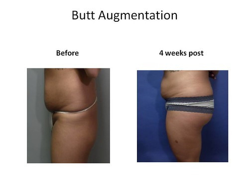 Butt Augmentation Myrtle Beach SC