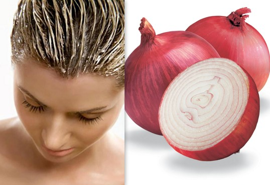 Onions For Natural Hair Home Remedies