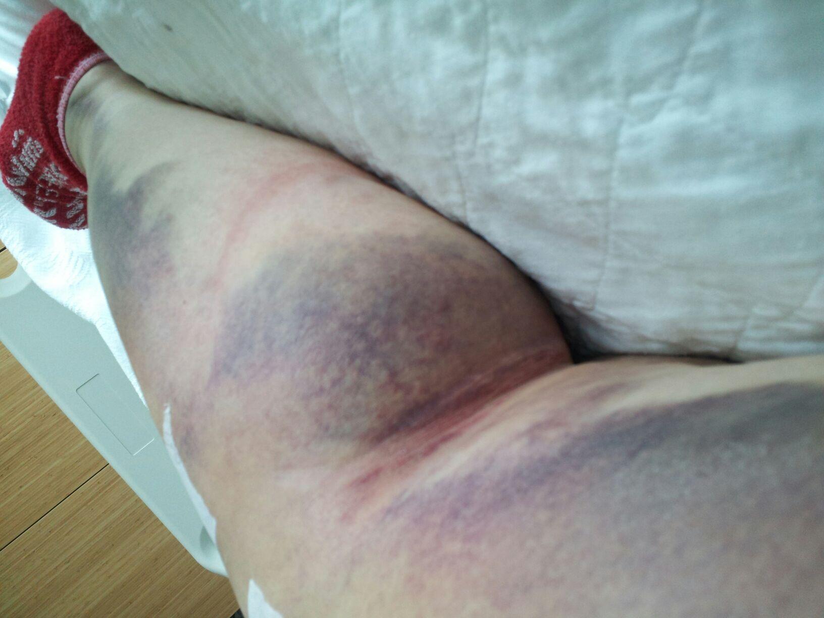 leg bruises tumblr - photo #44