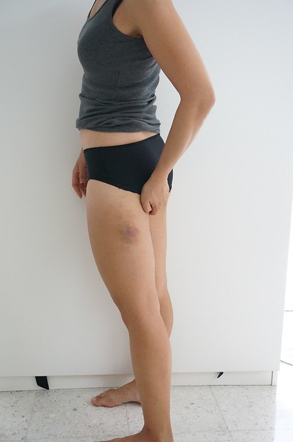REVIEW Coolsculpting by Clique Clinic - Before and after pictures of Rebecca Saw