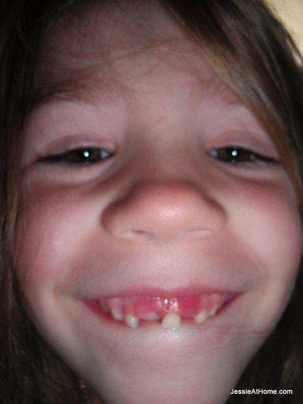 loose-tooth-kiddo
