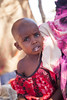 Ayan Yasin Confirmed Wild Polio Virus (WPV-1) case in Degafur rural village