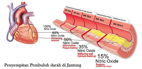 Obat Tradisional Penyumbatan Pembuluh Darah