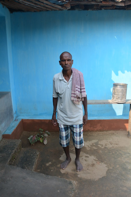 Ved Prasad was the first person from Amatikra who requested the JSS team to have a look at his village's health problems. He is suffering from Skeletal Fluorosis.