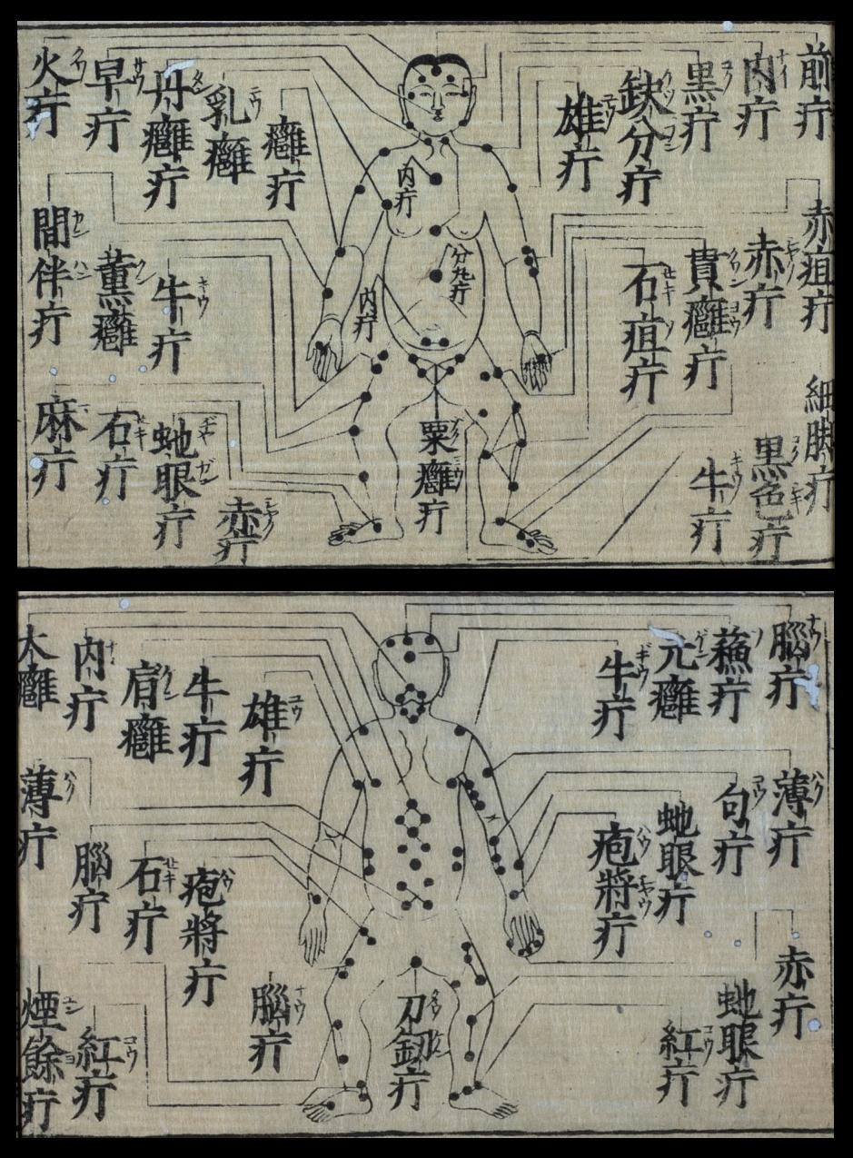 chinese acupuncture, acupuncture, chinese, ancient Chinese, reflexology,  Chinese acupuncture, acupuncture points, acupuncture atlas, antique atlas of acupuncture, Su Jok,  old Chinese manuscript, manusript acupuncture, ancient Chinese medicine, Chinese medicine,