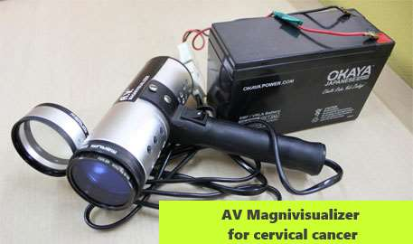 AV Magnivisualizer for cervical cancer
