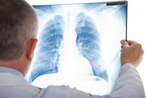 Vì sao lại bị sưng phổi? duyên do nào thường gặp? căn do nào nguy hiểm nhất? - dien dan bep dien tu