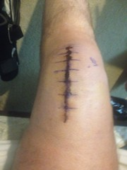 Knee Surgery - After