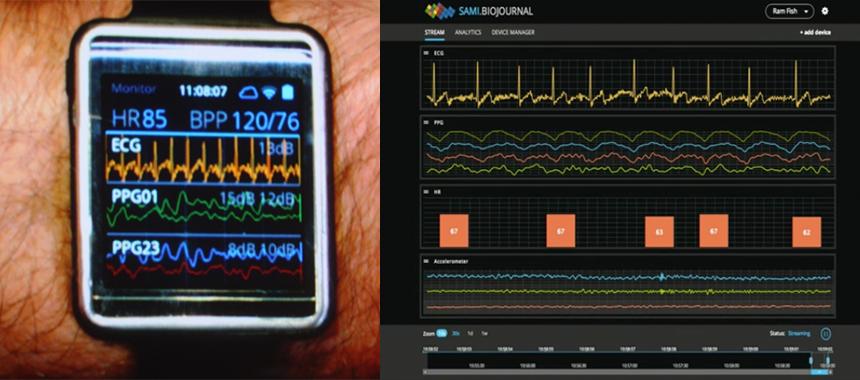 삼성의 'Simband'와 'S.A.M.I. Biojournal'