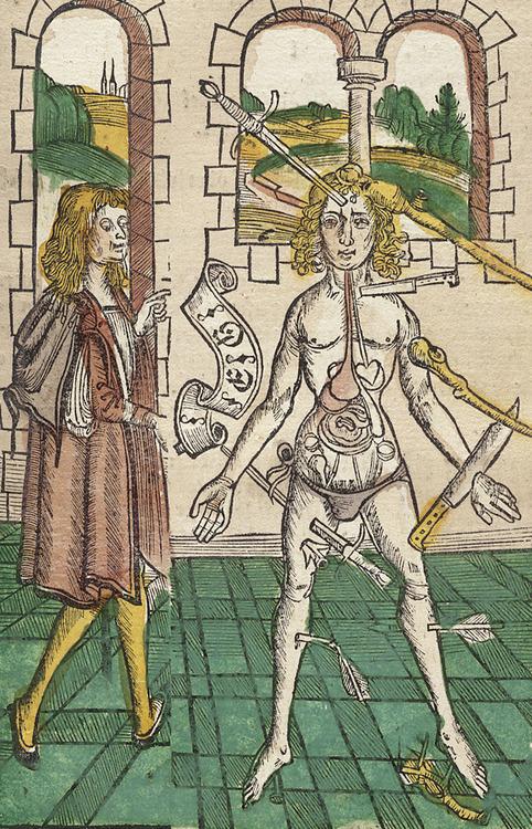 Anatomía de un hombre herido
