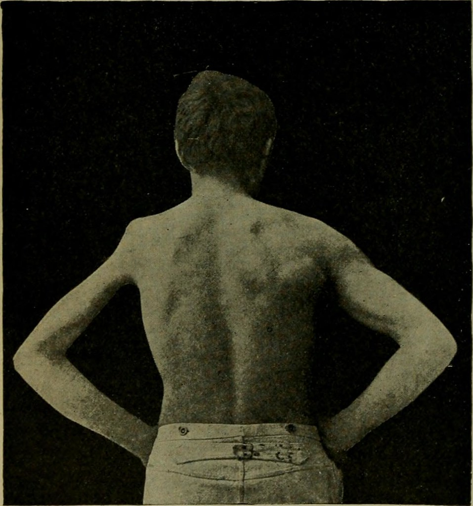 "Image from page 163 of ""Text-book of nervous diseases; being a compendium for the use of students and practitioners of medicine"" (1901)"