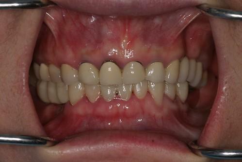 黃經理牙醫診所 賴盈利醫師的全瓷冠治療10