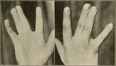 "Image from page 260 of ""Plastic surgery; its principles and practice"" (1919)"
