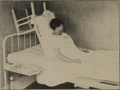 """Image from page 123 of """"Personal hygiene and home nursing : a practical text for girls and women for home and school use"""" (1919)"""