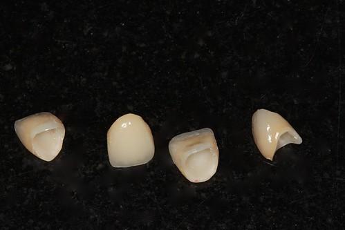 黃經理牙醫診所 賴盈利醫師的全瓷冠治療11