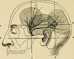 "Image from page 39 of ""Manual of operative surgery"" (1921)"