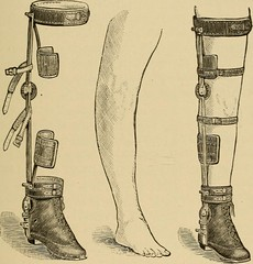 "Image from page 476 of ""Postoperative treatment; an epitome of the general management of postoperative care and treatment of surgical cases as practised by prominent American and European surgeons"" (1907)"