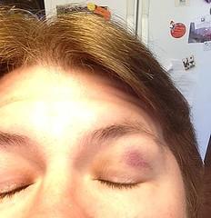 QB's bruised eye