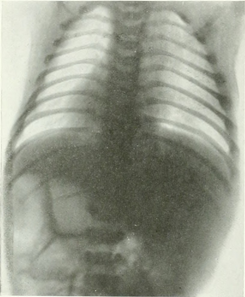Image from page 639 of The American journal of roentgenology, radium therapy and nuclear medicine (1906)
