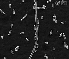 Hyperelongated bacterium