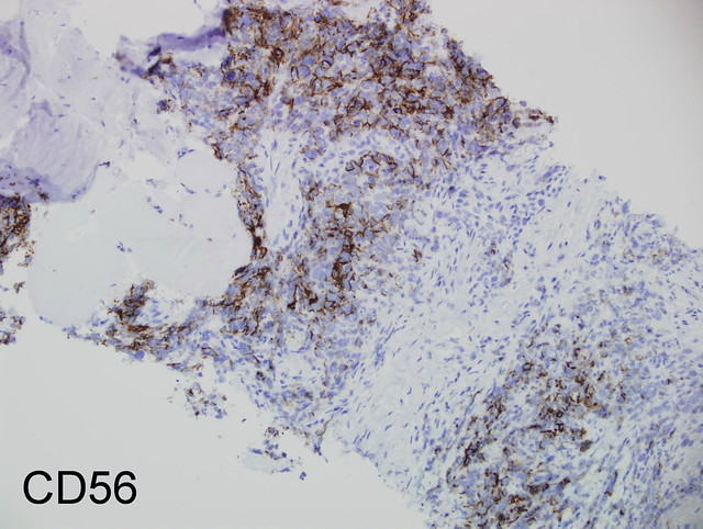 Image Result For Ck  Lung