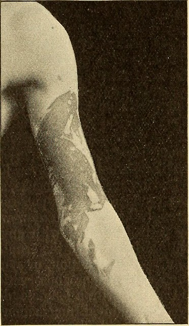 """Image from page 209 of """"A practical treatise on diseases of the skin, for the use of students and practitioners"""" (1897)"""