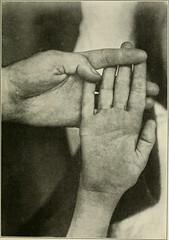 psychology of Physical Illness