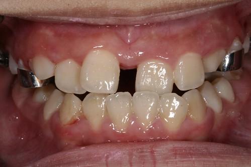 黃經理牙醫診所 兒童牙醫-戽斗牙齒矯正2