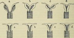 """Image from page 885 of """"Lehrbuch der speziellen pathologischen Anatomie für Studierende und Ärzte"""" (1907)"""