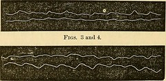 """Image from page 307 of """"On epilepsy : anatomo-pathological and clinical notes (with original plates and engravings.)"""" (1870)"""