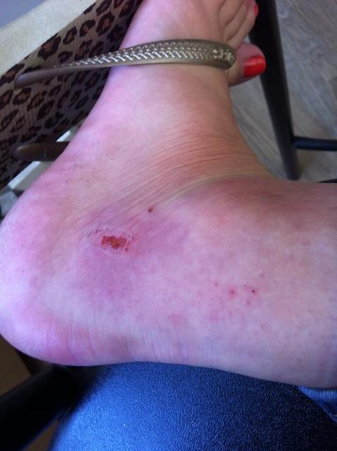 Bug Bite Swelling