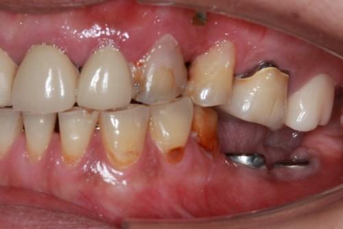 台中黃經理牙醫診所-氧化鋯全瓷冠假牙植牙重建 (1)