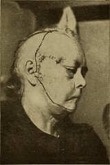 """Image from page 352 of """"Postoperative treatment; an epitome of the general management of postoperative care and treatment of surgical cases as practised by prominent American and European surgeons"""" (1907)"""