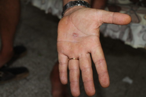 La croce ha lasciato i segni anche sul palmo della mano